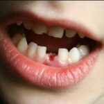 Nằm mơ thấy rụng răng: Giải mã bí ẩn, đánh lô đề con gì?