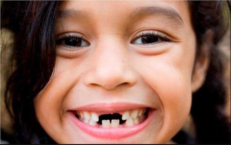 Ý nghĩa của việc ngủ mơ thấy răng rụng